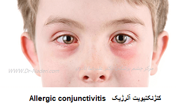 کنژنکتیویت آلرژیک Allergic conjunctivitis