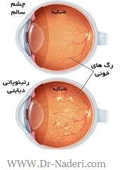Diabetic eye problems دیابت و چشم